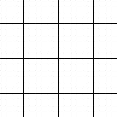 Amsler Grid Testing Discovery Eye Foundation
