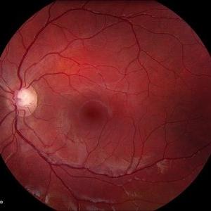 myopia retinal deformation