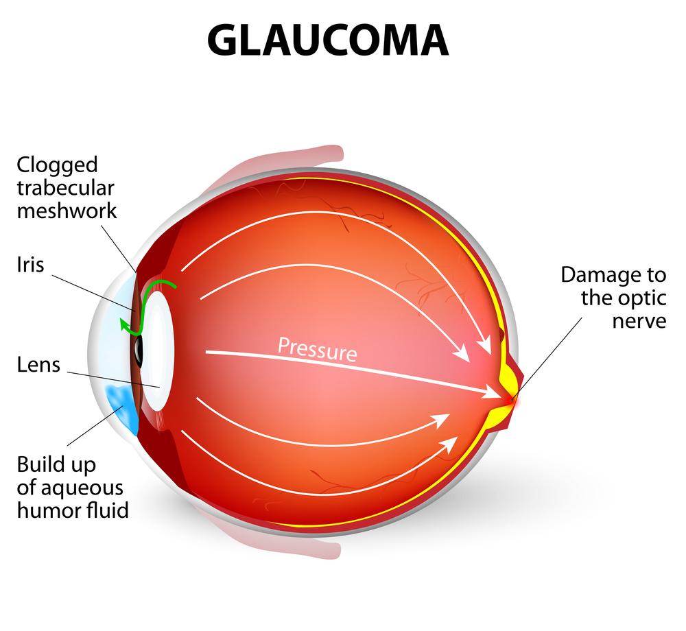 glaucoma diagram discovery eye foundation Retinal Detachment Diagram